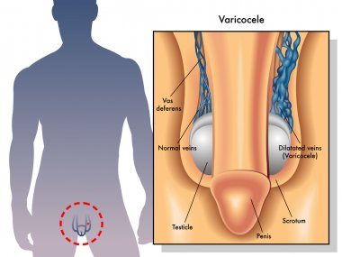 effects of testicular cancer