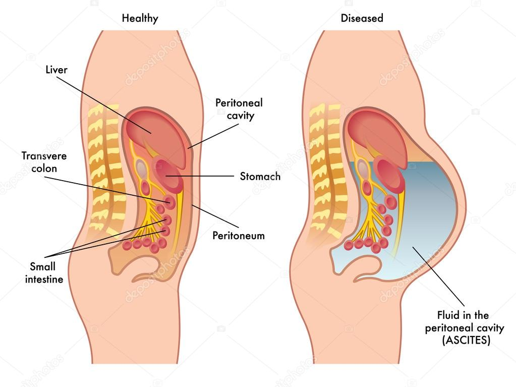 fluid in peritoneal cavity — Stock Vector © rob3000 #95368066
