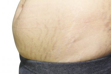 stretch marks on Asian woman belly