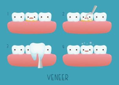 Veneer tooth of dental clip art vector