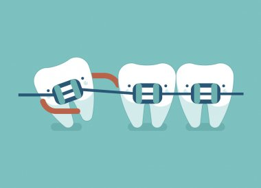 Braces teeth of dental healthcare ,dental concept