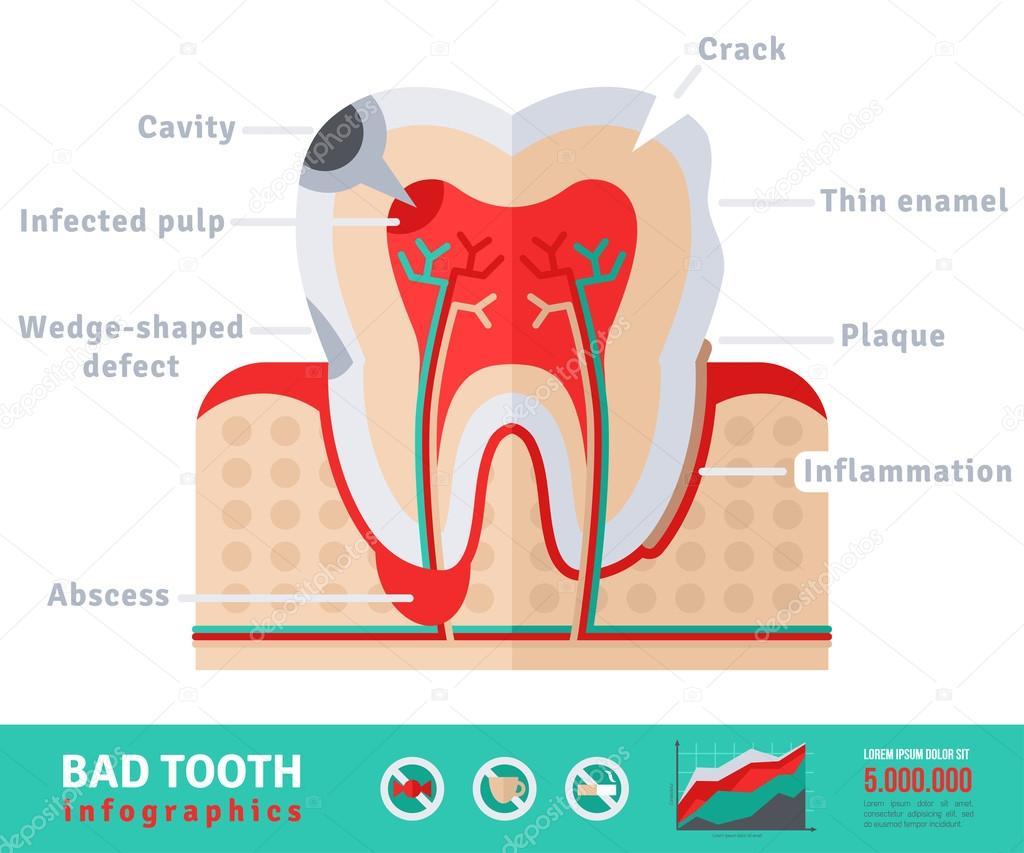 Concepto de plano icono anatomía diente malo — Vector de stock ...