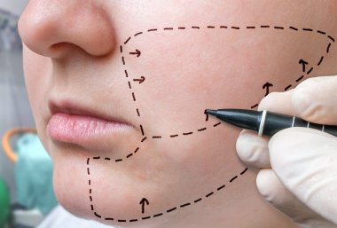Facial plastic surgery. Hand is drawing lines with marker on cheek