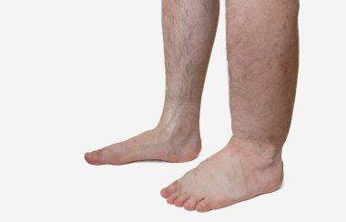 Leg of diseased patient who suffers from Edema.
