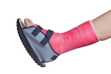 Foot splint treatment