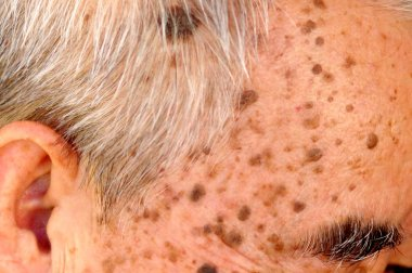 Old Asian man's head full of freckles