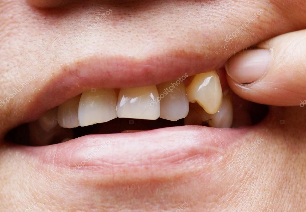 Human Canine Tooth Wearing Down Stock Photo C Weerapat 119022744