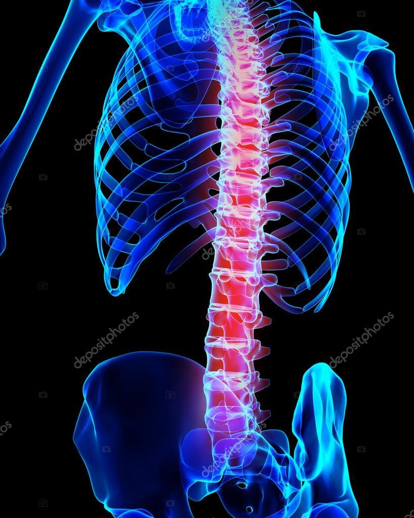 Wirbelsäule schmerzhaft Skelett Röntgen, 3d illustration — Stockfoto ...