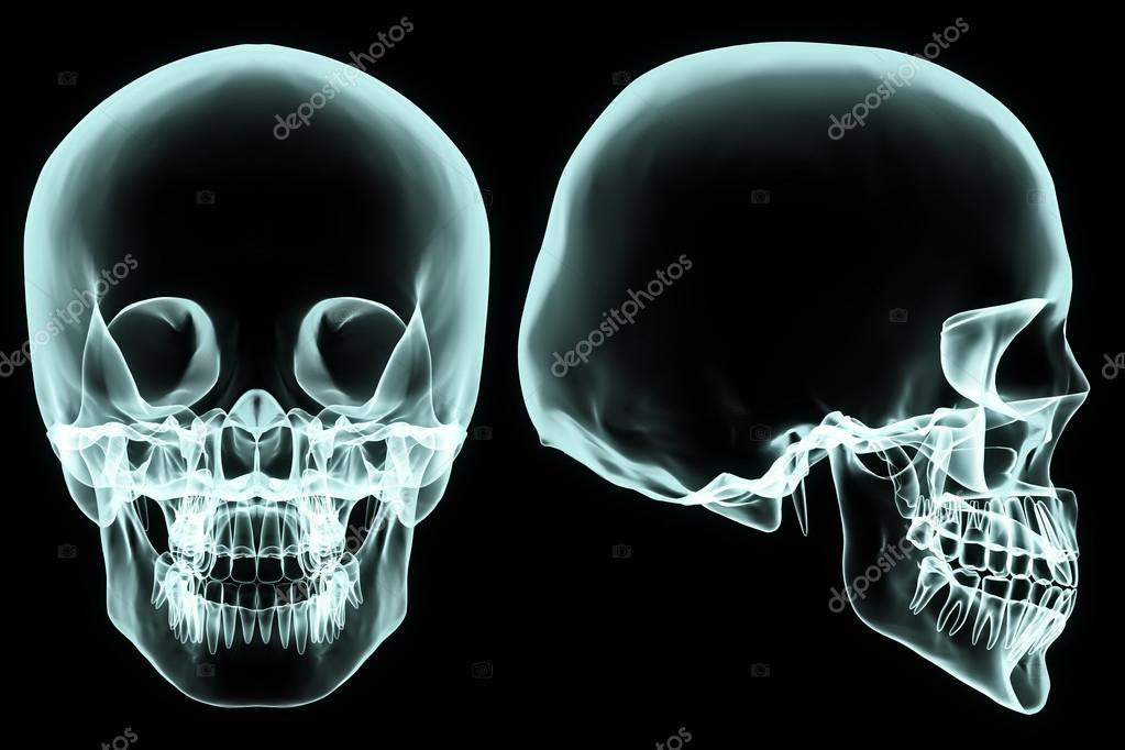 cráneo de rayos x — Fotos de Stock © yodiyim #117543534