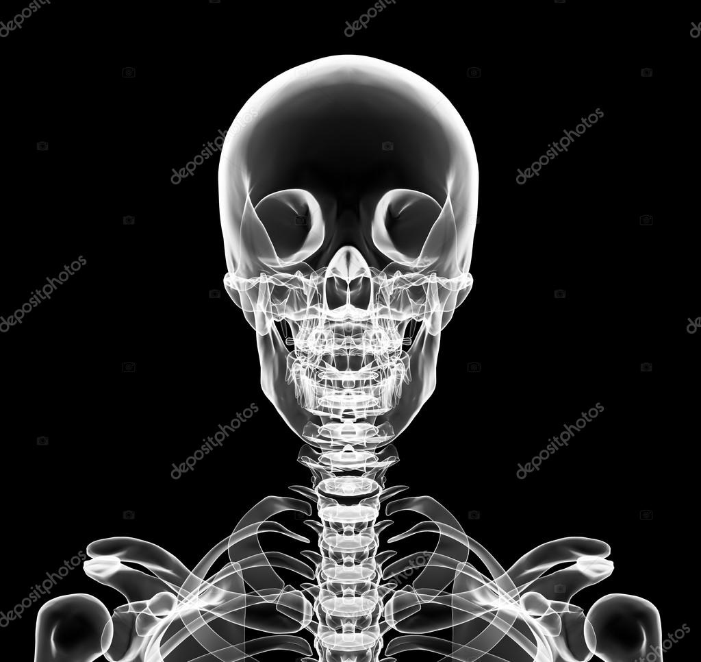 Obere Brust Röntgen inklusive Schädel — Stockfoto © yodiyim #117582244