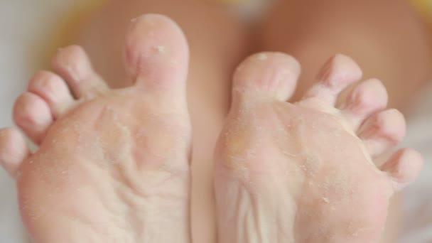 weibliche Füße mit abblätternder Haut. Fußpeeling nach dem Eingriff