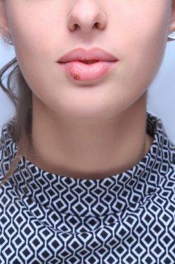 beautiful lips virus infected herpes