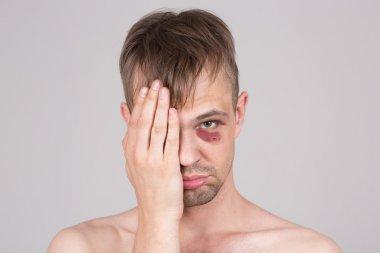 Man with an injured eye. Closeup.