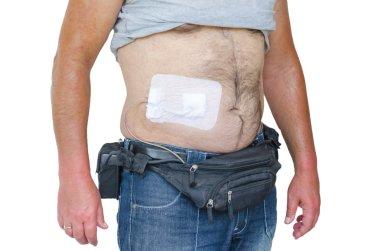 Assist devices, artificial hearts, LVADs, DCM