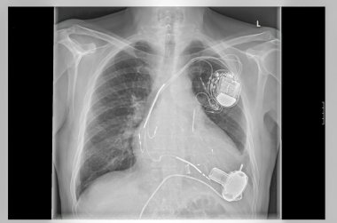X-ray image, links, artificial heart pacemaker