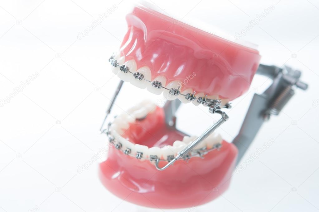 Dental lower jaw bracket braces model on white — Stock Photo ...