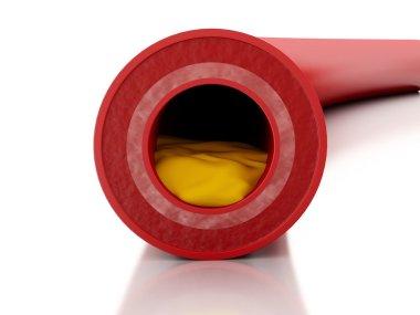 3d Cholesterol plaque in artery.