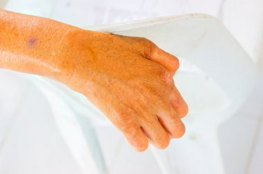 closeup hand of old man suffering from leprosy on the backrest o