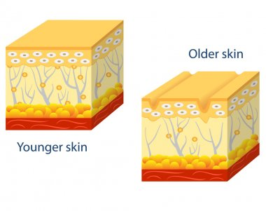 Younger skin and aging skin.