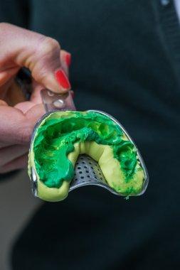 Silicone mold dental