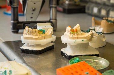 materials for dental prostheses