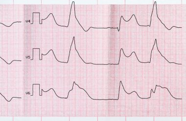 Tape ECG with macrofocal myocardial infarction and ventricular bigemia