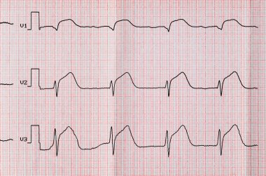 ECG with acute period macrofocal anterior myocardial infarction