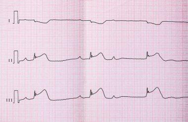 ECG with acute period of macrofocal myocardial infarction, AV block II degree type Mobitts I