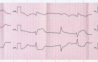 ECG with acute period macrofocal myocardial infarction and ventricular premature beats