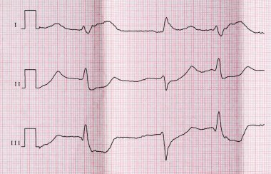 ECG with acute period of myocardial infarction and ventricular premature beats