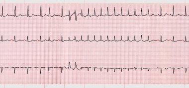 ECG with supraventricular arrhythmias and short paroxysm of atrial fibrillation