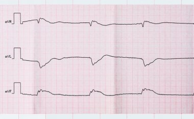 Tape ECG after clinical death and a successful resuscitation