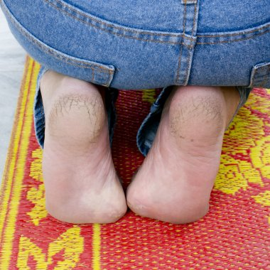Close up Cracked heels.