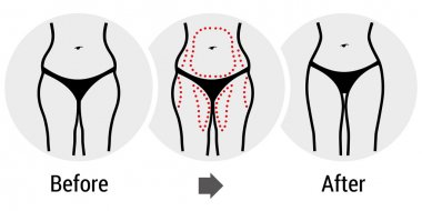 plastic surgery hips