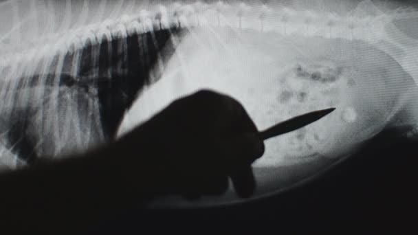 Kámen močového měchýře na rentgenový snímek