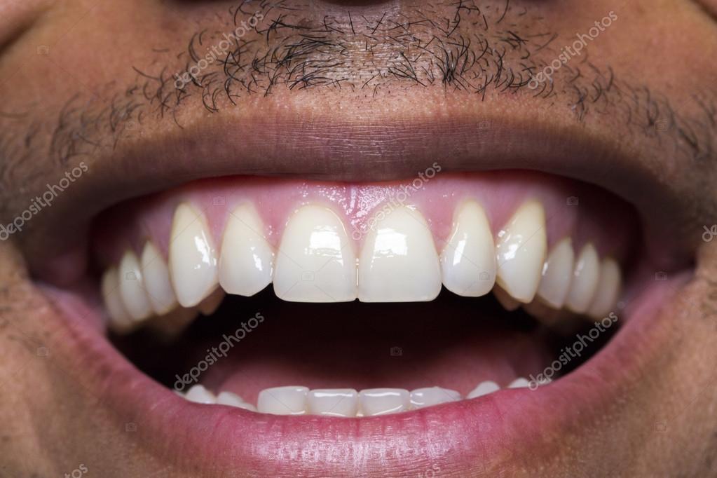 красивые зубы фото