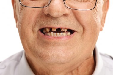 Mouth of a senior man with broken teeth