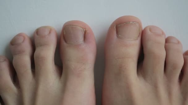 Young Healthy Feet Get Old And Sick With Toenails Fungal Infection Stock Video