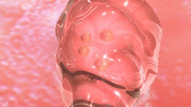 IVF Human Embryo transfer.