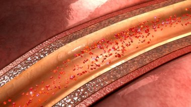 coronary artery vessel