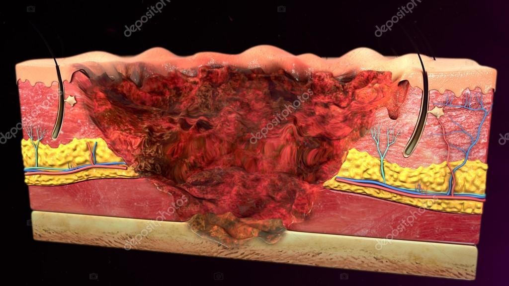 Cuarto grado quemaduras en la piel — Foto de stock © sciencepics ...