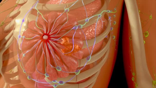Brust Krebsmetastasen