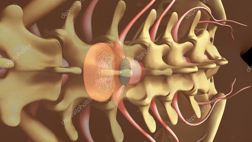 Anestesia espinal para la entrega — Foto de stock © sciencepics ...