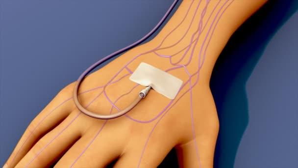Drugs injection through catheter.