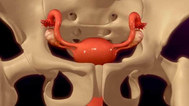 Histerectomía, extirpación del útero — Vídeos de Stock © sciencepics ...