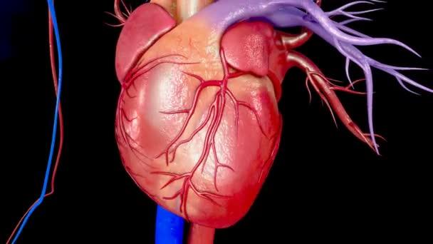 Herz-Myokardinfarkt