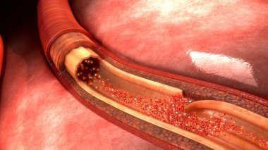Blood Artery Dissection