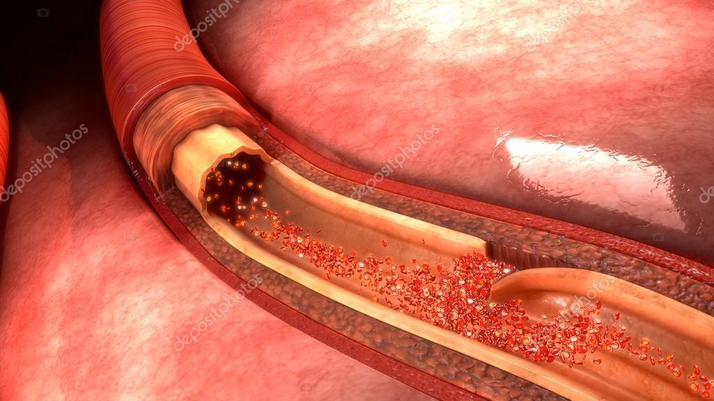 Blut Arterie Dissection — Stockfoto © sciencepics #121653324