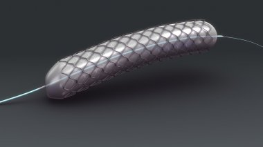 endovascular metal stent