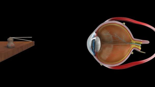 Hypermetropia normal eye
